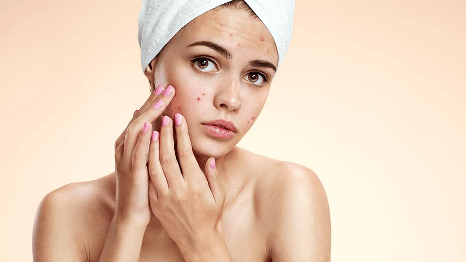 bí kíp phục hồi da sau mụn của phụ nữ Hàn